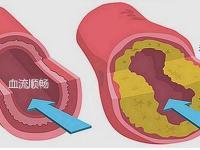 动脉硬化可以吃三七粉吗?