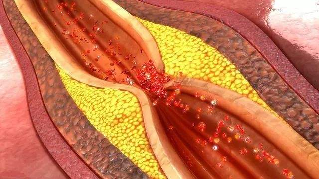 血管堵塞血瘀怎么吃三七粉?教你一套秘方