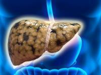 三七粉调节脂肪肝的吃
