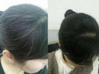 何首乌能治疗白发吗?有