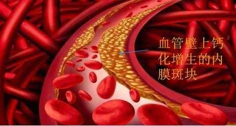三七为什么被誉血管清道夫?详解三七粉对血管的作用