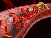 三七为什么被誉血管清