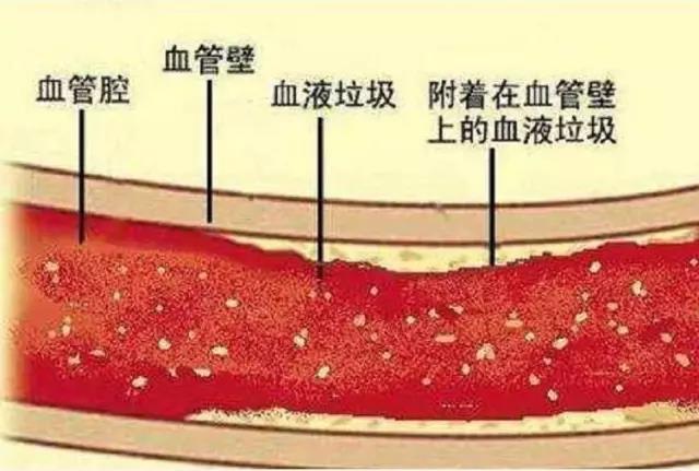 三七花对血脂稠的作用